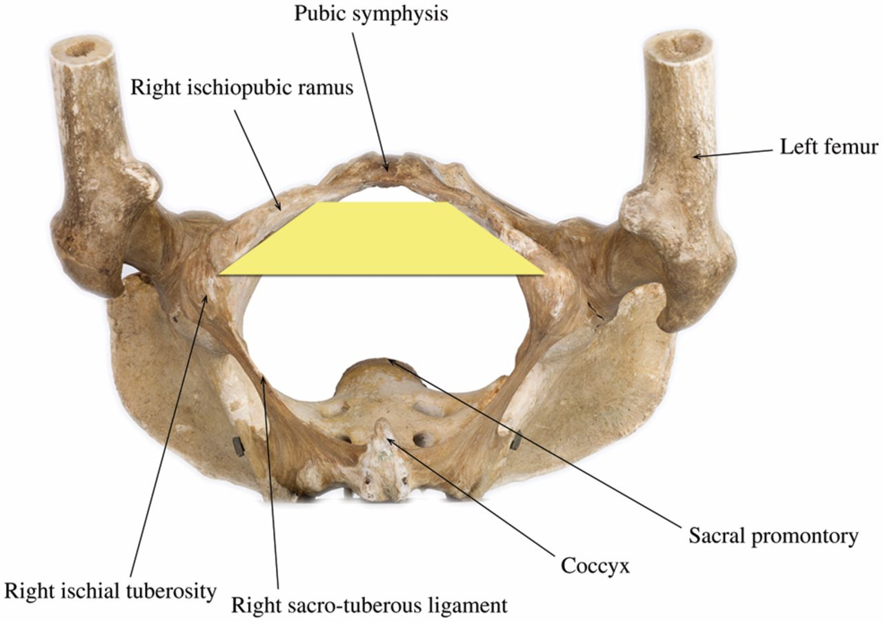 The surgical anatomy of the perineum | Journal of the Royal Army ...
