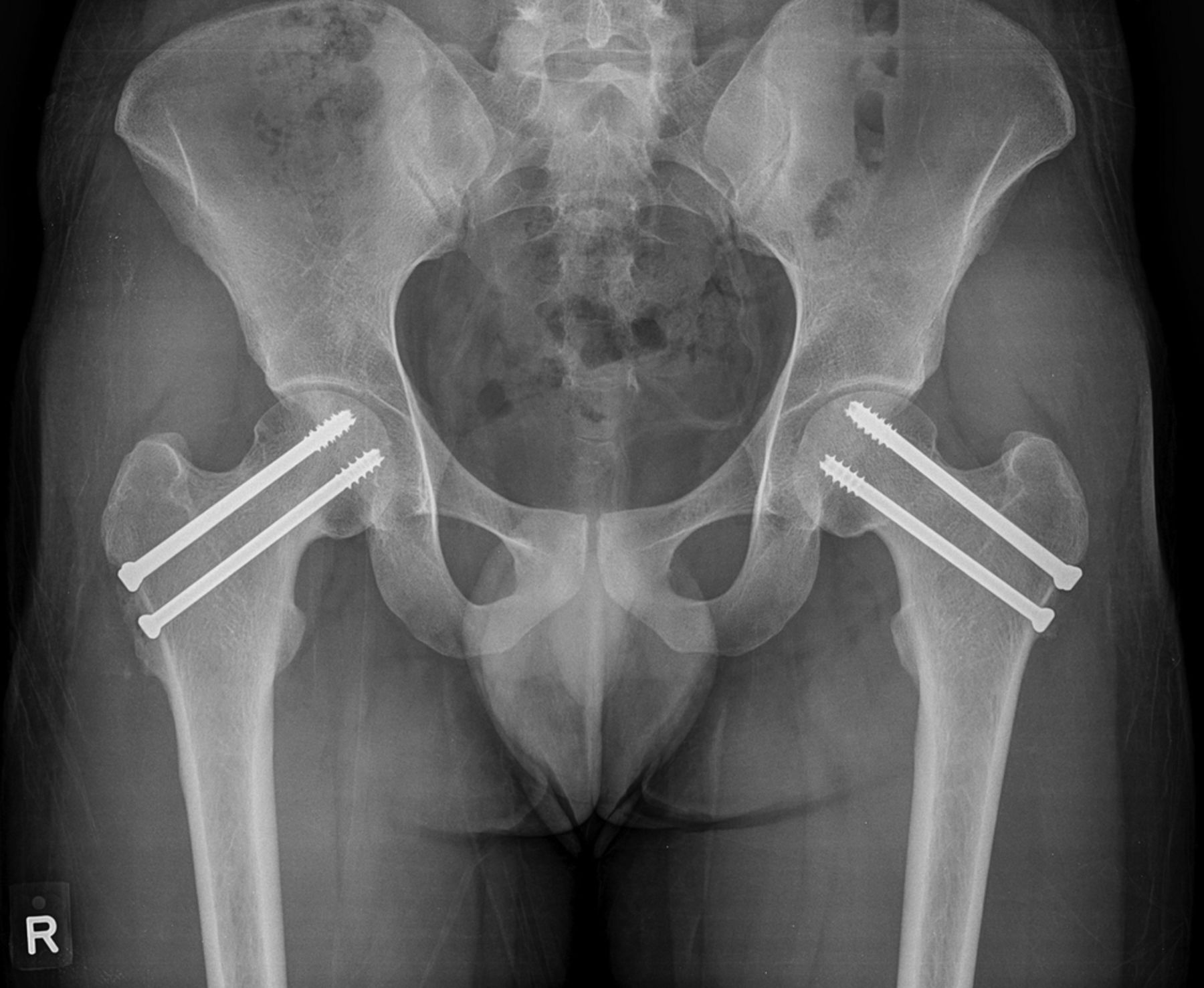 Bilateral Femoral Neck Stress Fractures In Military